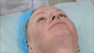 Удаление морщин в домашних условиях, Вакуумный массаж лица,  зона вокруг глаз и вокруг рта
