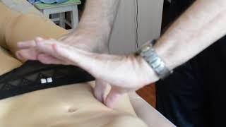 Лечение подвздошно-поясничной мышцы (миофасциальный синдром ППМ).